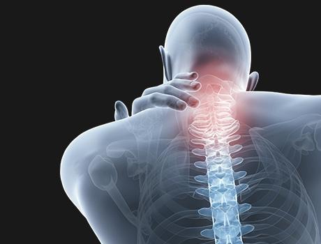 頚椎 椎間板 ヘルニア